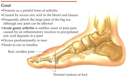 acute gout patient uric acid in blood and joint pain cut uric acid molecules