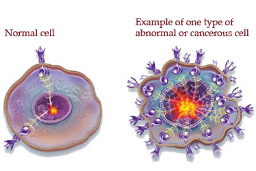 http://www.hiltonheadmedctr.com/images/What-Is-Cancer.jpg